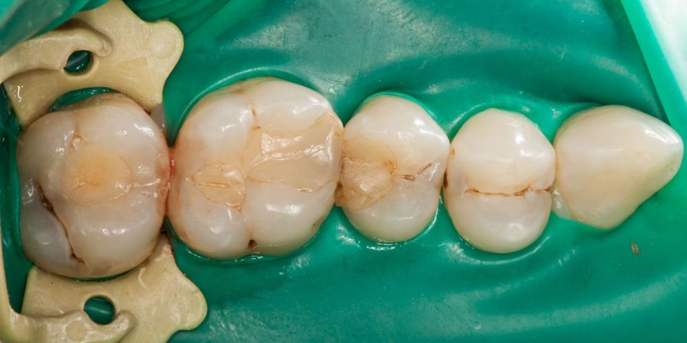 Обойтись без потерь. Какие болезни зубов важно вылечить