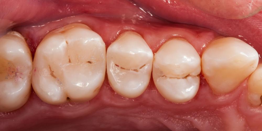 Кариес между зубами фото