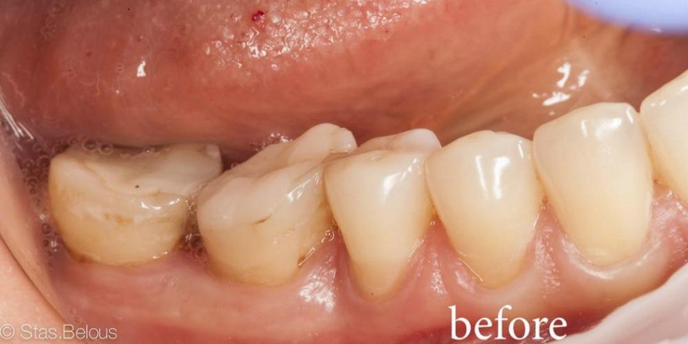 Откололся зубной камень
