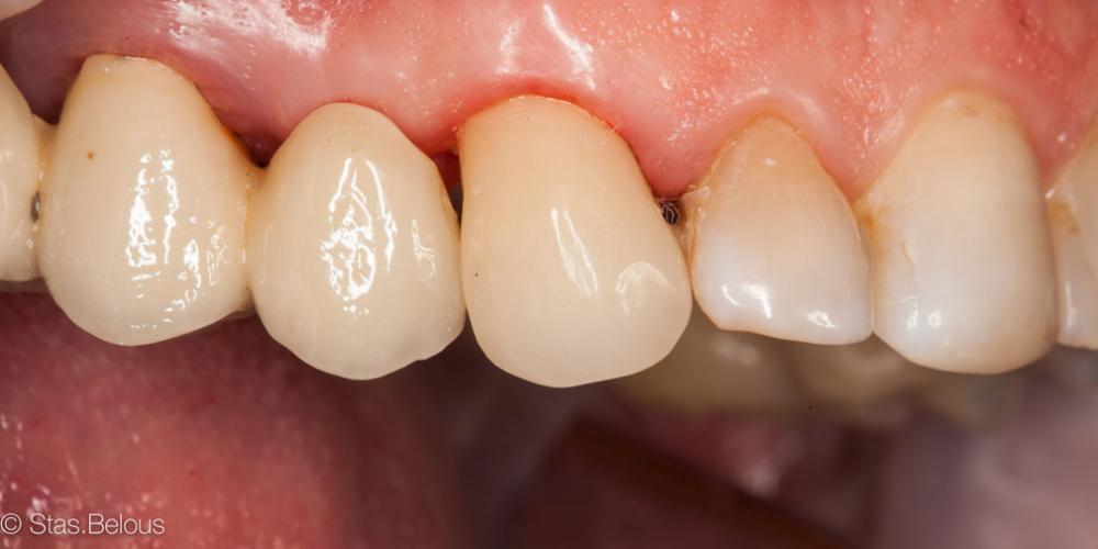 Реставрация зубов cerec