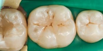 Замена пломб на зубах с истекшим сроком эксплуатации фото после лечения