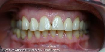 Эстетическое протезирование зубов верхней челюсти фото до лечения