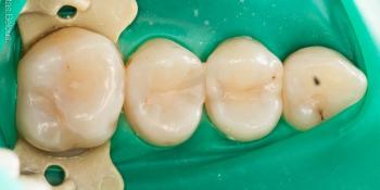 Скрытый кариес, лечение скрытых кариозных полостей на боковых поверхностях зубов фото до лечения