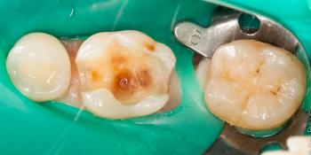 Цельнокерамическая реставрация жевательного зуба фото до лечения