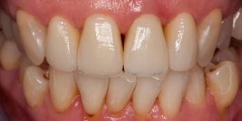 Воссоздание естественной улыбки керамическими винирами фото после лечения