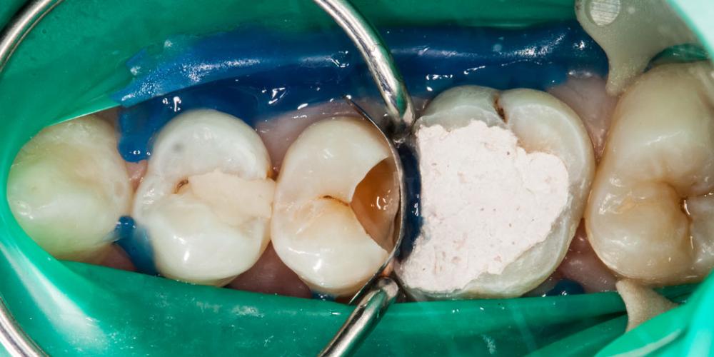 Как удалить зуб у беременной 69