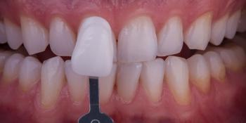 Отбеливание зубов безопасно фото после лечения