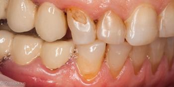 Восстановление утраченных тканей зуба коронкой Cerec фото до лечения