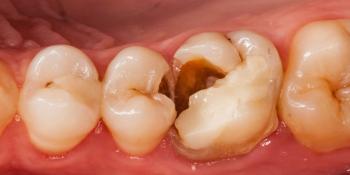Выпадение пломбы из 26 зуба фото до лечения