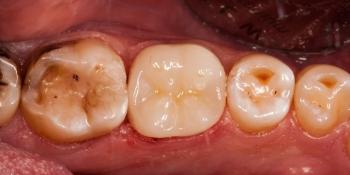 Восстановление разрушенного зуба керамической полукоронкой фото после лечения