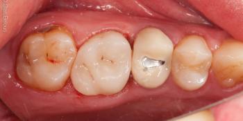 Восстановление зуба цельнокерамической коронкой фото после лечения