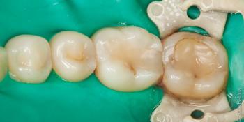 Жалоба на застревание пищи между зубами 36 и 37 фото до лечения