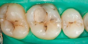 Пломба или реставрация зуба фото до лечения