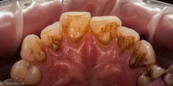 Профессиональная гигиена полости рта фото до лечения
