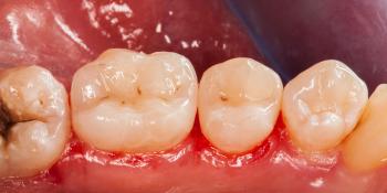 Начали лечение кариеса на одном зубе, а в итоге сделали - 2, цельнокерамическими вкладками фото после лечения
