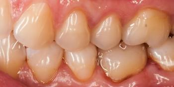 Восстановление зуба цельнокерамической коронкой смоделированной в 3D фото после лечения