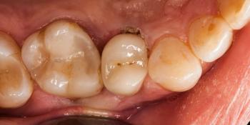 Скол депульпированного зуба (без нерва) фото после лечения
