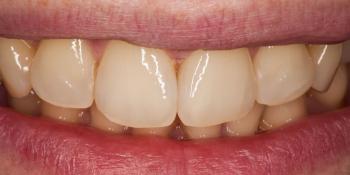 Лечение кариеса и реставрация передних зубов фото после лечения