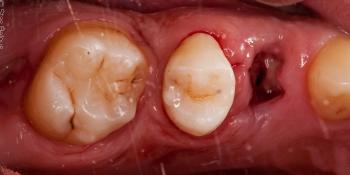 Лечение кариеса двух зубов в одно посещение фото после лечения