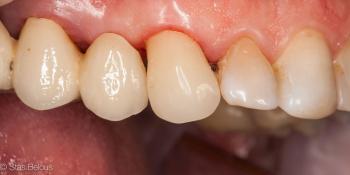 Восстановление утраченных тканей зуба коронкой Cerec фото после лечения