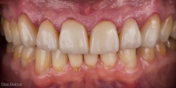 Полное воссоздание верхнего зубного ряда фото после лечения