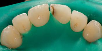 Лечение кариеса и реставрация скола на переднем зубе фото до лечения