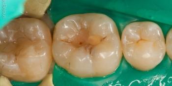 Замена пломб на зубах с истекшим сроком эксплуатации фото до лечения