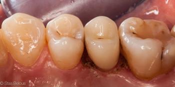 Коронка по технологии CEREC из литий силикатной керамики E.max с индивидуализацией фото после лечения