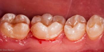Сладкоежки - будте бдительны, кариес 46 зуба фото после лечения