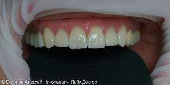 Эстетическое протезирование зубов верхней челюсти фото после лечения