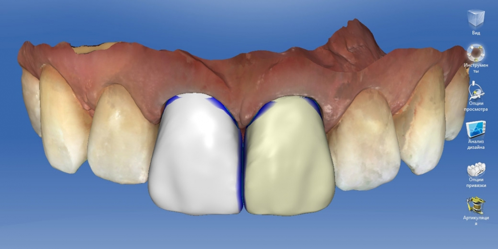 Удаление коронок зубов цена