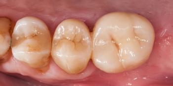 Протезирование зуба после имплантации фото после лечения