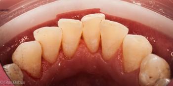 Профессиональная ТОТАЛЬНАЯ чистка зубов фото после лечения