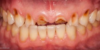 Полное воссоздание верхнего зубного ряда фото до лечения