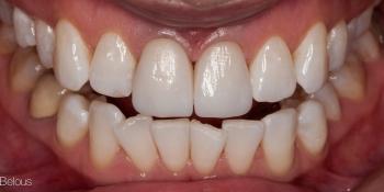 Ожидание белоснежной улыбки заняло 15 лет фото после лечения