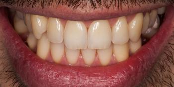 Лечение кариеса и реставрация скола на переднем зубе фото после лечения