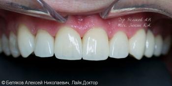 Эстетическое протезирование фронтальной группы зубов верхней челюсти фото после лечения