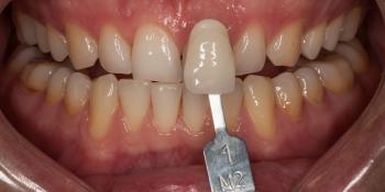 Отбеливание зубов безопасно фото до лечения