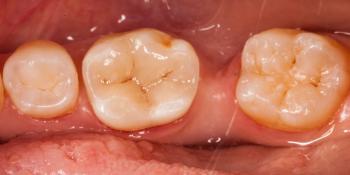 Цельнокерамическая реставрация жевательного зуба фото после лечения