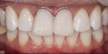 Временные реставрации по форме своих собственных зубов фото после лечения