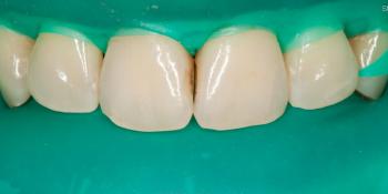 Лечение кариеса и реставрация передних зубов фото до лечения