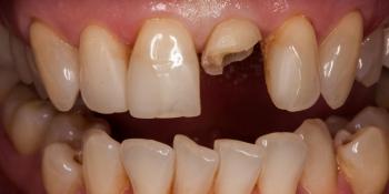 Воссоздание естественной улыбки керамическими винирами фото до лечения