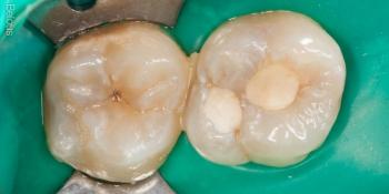 Результат лечения кариеса, реставрация жевательного зуба фото до лечения