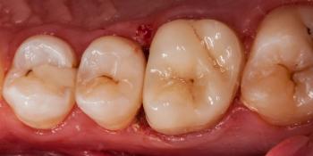 Выпадение пломбы из 26 зуба фото после лечения