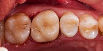 Неожиданный скол зуба 26 фото после лечения