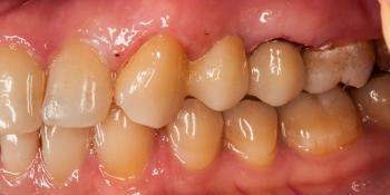 Установка мостовидного протеза из 3х единиц с опорой на 2 зуба фото после лечения